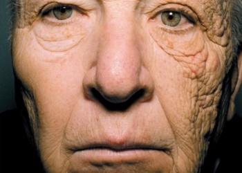 Stokoderm UV30 защита от фотостарения кожи