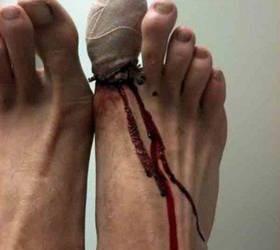 Закупка спецобуви Травмы ног