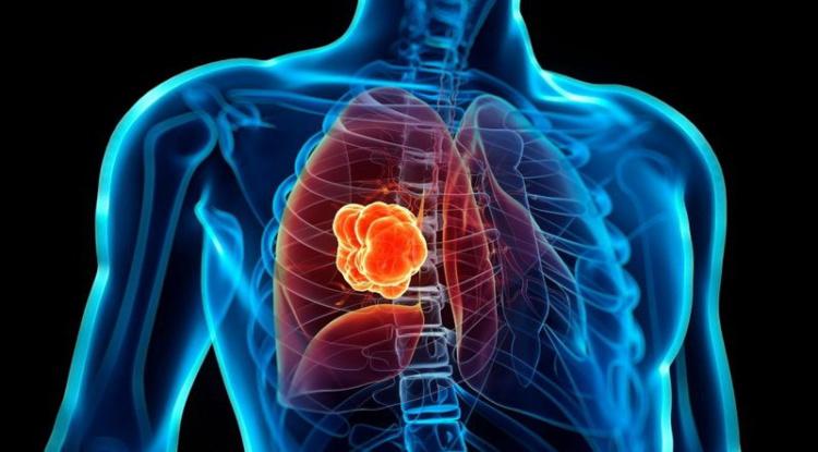 Как бороться с возникновением онкологии у сварщиков